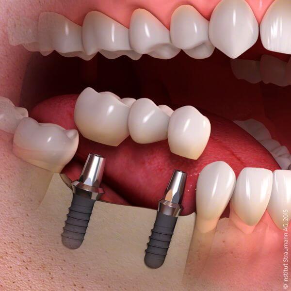 Günstige Zahnbrücken auf Zahnimplantaten