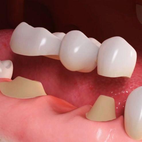 Zahnersatz und Zahnbrücke aus dem Ausland