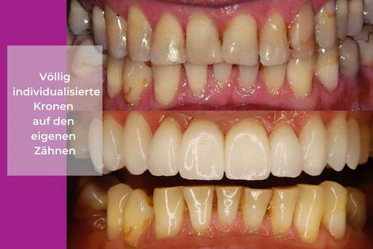 Zahnklinik-im-Ausland-In-Polen-schone-Zahne