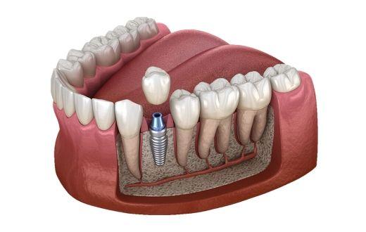 Erfahrung implantat zahn Forum für