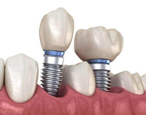 Zahnimplantate realisierung