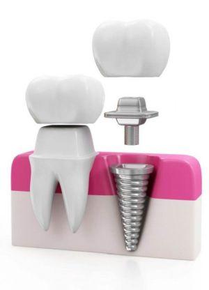 Zahnkrone auf einem eigenen Zahn und auf einem Zahnimplantat