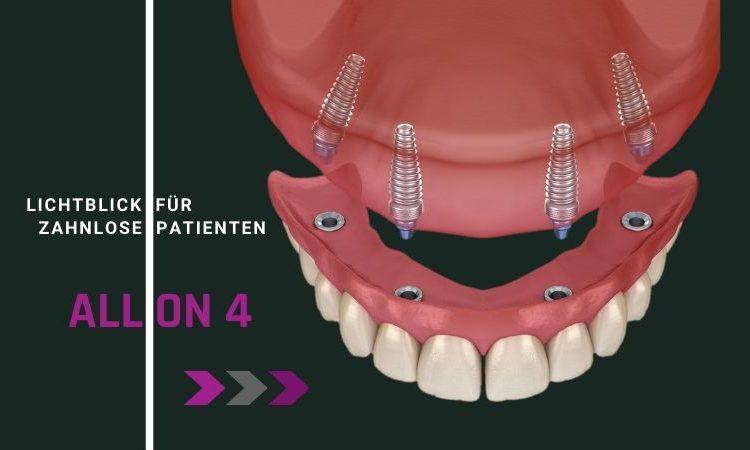 All on 4 Methode.Neue feste Zahne an einem Tag. Sofortimplantate