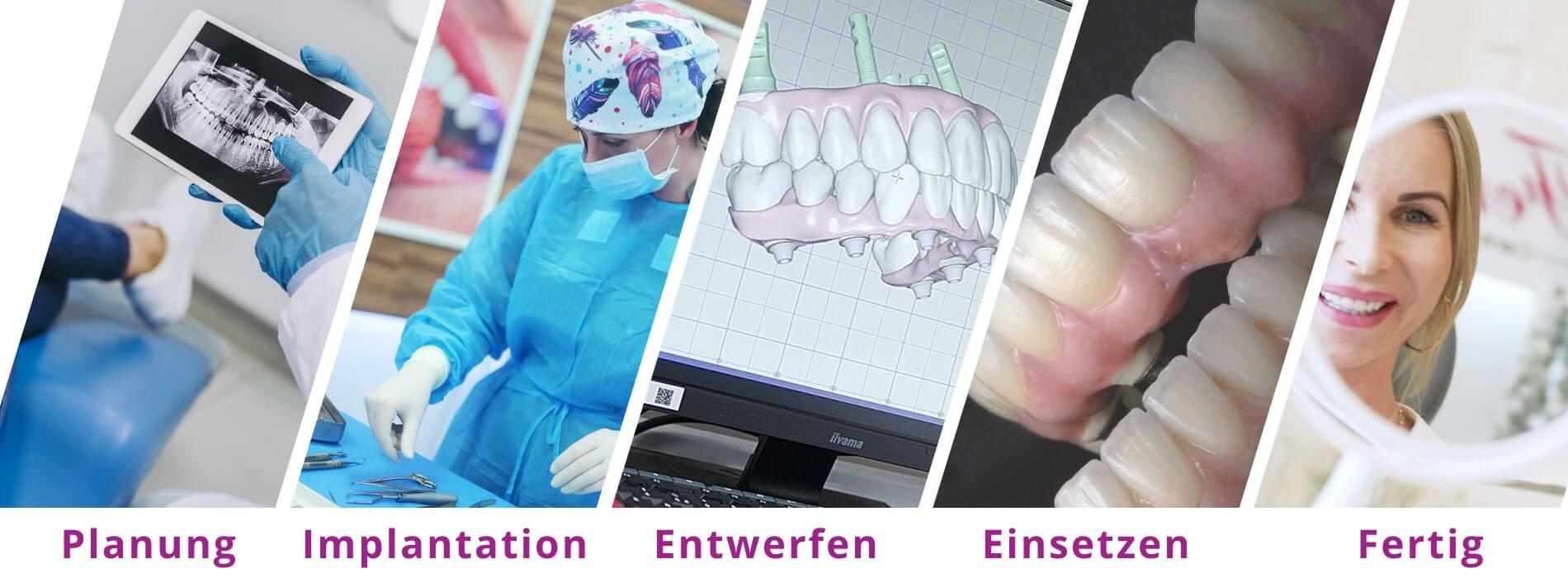 All on 4 Implantate Ausland – Behandlungsverlauf und