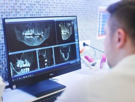 Volle Diagnostik mittels 3d Rontgen bei Zahnarzt