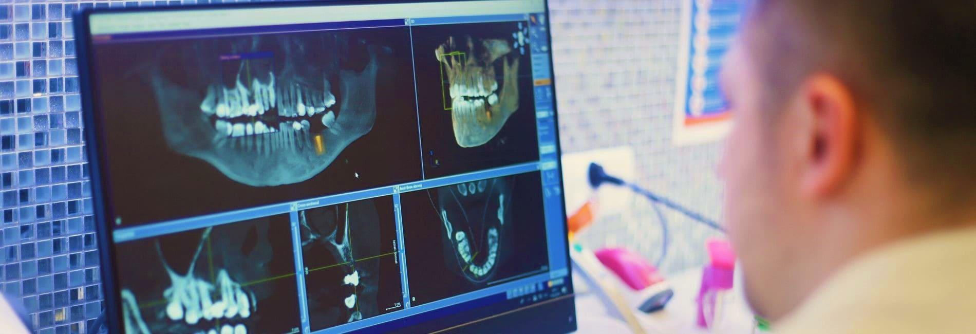 Dental-Clinic-Beste-Spezialisten-bei-Zahnklinik-Polen